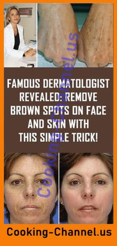 Famous Dermatologist Revealed: Remove Brown Spots On Face And Skin With This Sim… Famous Dermatologist Revealed: Remove Brown Spots On Face And Skin With This Simple Trick! Sun Spots On Skin, Black Spots On Face, Brown Spots On Hands, Age Spots On Face, Spots On Legs, Dark Spots, How To Get Rid, How To Remove, Sunspots On Face