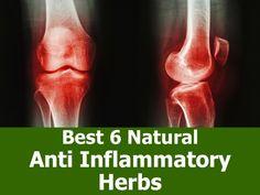 Best 6 Natural Anti-Inflammatory Herbs