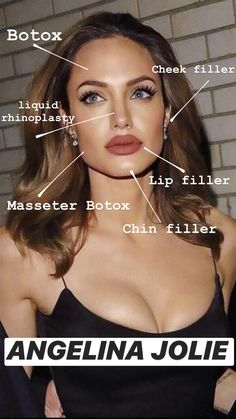 Botched Plastic Surgery, Celebrity Plastic Surgery, Cheek Fillers, Botox Fillers, Botox Lips, Ariana Grande Makeup, Eyebrow Lift, Skin Detox, Chemical Peel