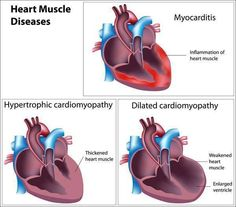 Heart Muscle Diseases. Myocarditis, hypertrophic cardiomyopathy & dilated cardiomyopathy. Photo curtesy: EMT/Paramedic FB.