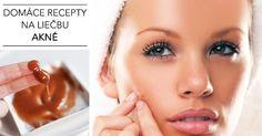 Domáce recepty na liečbu akné • Akadémia Krásy