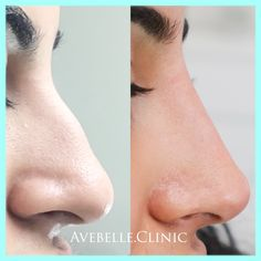 Non-Surgical Nosejob Using only dermal filler injections to reduce the size and give more structured look To Book a Free consultation call 6472399971 Nose Fillers, Facial Fillers, Botox Fillers, Dermal Fillers, Nose Plastic Surgery, Nose Surgery, Aesthetic Dermatology, Glossy Eyes, Nose Contouring