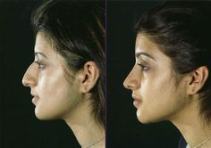 There are different techniques on how to perform a rhinoplasty. Click here for more information http://www.drnoseknows.com/