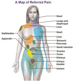 Map of Referred Pain with Explanation -- Modern medicine hasn't entirely explained the reasons behind referred pain.good to know/keep on file Health And Beauty, Health And Wellness, Health Tips, Health Fitness, Referred Pain, Nursing Tips, Medical Information, Nclex, Anatomy And Physiology