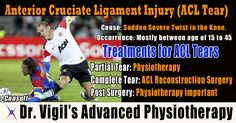 Anterior Cruciate Ligament Injury (ACL Tear) can be caused by sudden twisting motions. ACL Tear mostly happen between age of 15 to 45.  Treatments for ACL Tears are below –   1. Partial Tear: Physiotherapy  2. Complete Tear: ACL Reconstruction Surgery 3. Post Surgery: Physiotherapy Important  Consult Dr. Vigil's Advanced Physiotherapy for treatment of ACL Tear. #acltear #twisting #motions #sportinjury #Physiotherapy #ACLReconstructionSurgery #Surgery #Reconstruction