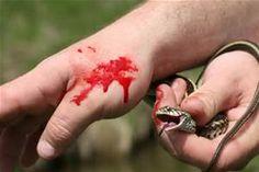 do garter snakes bite bing images - Garden Snake Bite