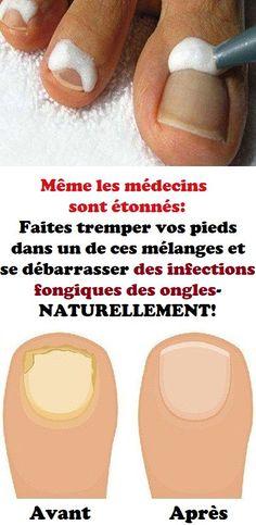 Même les médecins sont étonnés: Faites tremper vos pieds dans un de ces mél... - #ces #dans #de #étonnés #Faites #les #médecins #mel #même #pieds #sont #tremper #vos