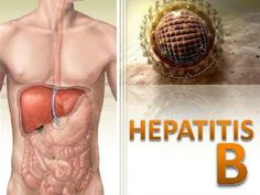 QUESTION: Are there any natural or home remedies for Hepatitis B that can…