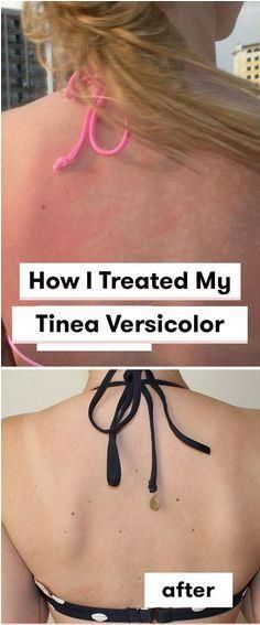 How To Get Rid Of White Spots From Tinea Versicolor