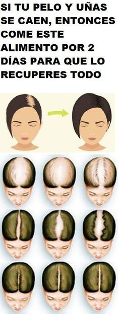 thicker hair remedies Stimulating Hair Growth - Many individuals experience issues such as hair loss. Therefore, we will give you some cures which will enable you to take care of this issue and enhance. Hair Remedies For Growth, Home Remedies For Hair, Hair Growth Tips, Hair Loss Remedies, Regrow Hair Naturally, Beauty Care, Face Beauty, Beauty Tips, Diy Beauty
