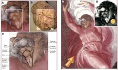 In addition Rafael Tamargo, M.D. discovered that Michelangelo depicted brain anatomy in the neck of God in another Sistine chapel fresco. He...