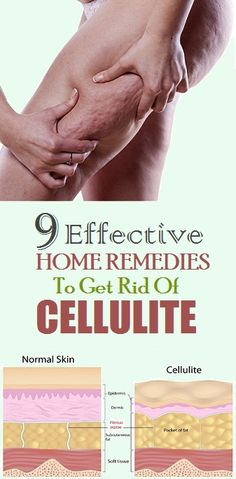 9 Effective Home remedies To Get Rid Of Cellulite Fast