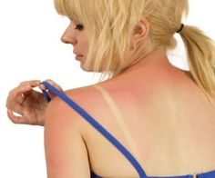 Home remedies for treat sunburn