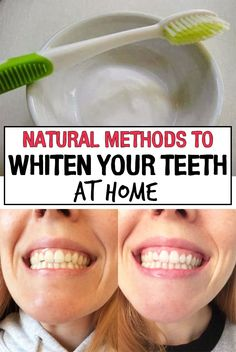 Natural Methods to Whiten Your Teeth at Home