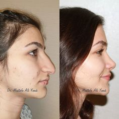 10 Rhinoplasty Recovery Timelineeven If You Ideas Nose Plastic Surgery, Nose Surgery, Rhinoplasty Surgery, Smoking Celebrities, Photoshop Celebrities, Hollywood Celebrities, Bulbous Nose, Estilo Madison Beer, Pretty Nose