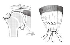 Shoulder Arthritis / Rotator Cuff Tears: causes of shoulder pain: Surgery for rotator cuff tears: repair, smooth and move, CTA arthroplasty,...