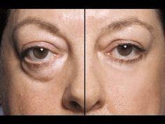 18 remedii naturale pentru pungile de sub ochi