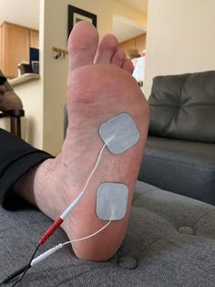 The correct TENS unit placement for plantar fasciitis – Optimize Health 365 Remedies For Plantar Fasciitis, Plantar Fasciitis Stretches, Plantar Fasciitis Shoes, Treatment For Plantar Fasciitis, Planters Fasciitis Treatment, Healing Plantar Fasciitis, Tens Electrode Placement, Facitis Plantar, Tens Unit Placement