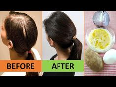 I got FULLER hair after curing my baldness naturally using only 4 ingredients. I applied for 5 days. I got FULLER hair after curing my baldness naturally using only 4 ingredients. I applied for 5 days Bald Hair Growth, Extreme Hair Growth, Natural Hair Growth Remedies, Home Remedies For Hair, Home Remedies For Baldness, Bald Hair Treatment, Hair Thickening Remedies, Fenugreek For Hair, Hair Fall Solution