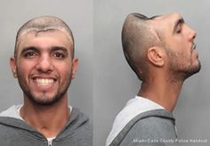 """A Miami, Florida man is using his head to warn others about the dangers of #drinkingand Driving & Drugginganddriving.     Carlos """"Halfy"""" Rodriguez lost half of his skull and brain after he was involved in a horrific car accident. Rodriguez was thrown from the vehicle and landed on his head. This happened when he was just 14 years old and he was the one driving the car."""