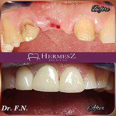 Fogpótlásra van szüksége? Természetes ásványból, cirkonból készíthetünk Önnek gyönyörű fogakat. Frontfogakra még mindig a legszebb, és legjobb megoldás. Keressen bennünket bizalommal! A Hermesz Dentalban szívesen állunk a rendelkezésére. Dental, Korn, Minion, Breakfast, Local Dentist Office, Morning Coffee, Minions, Teeth, Dentist Clinic