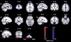 fibromyalgia brain scan results