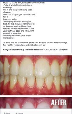 Diy teeth whitening for when my braces come off in a couple months diy teeth whitener baking soda hydrogen peroxide it tastes soooooo bad but trust solutioingenieria Image collections
