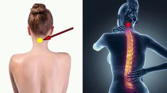 How applying ice to the feng fu point in the back of the neck can help you reclaim your health and keep illness's away.This secr. Middle Back Pain, Upper Back Pain, What Happened To You, What Happens When You, Low Back Pain Relief, Back Pain Remedies, Alternative Health, Alternative News, Pressure Points
