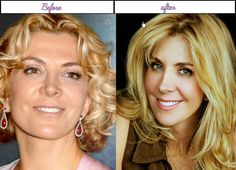 Natasha Richardson Acquired Plastic Surgery Her Right After Before Appears To Be Like - http://www.aftersurgeryjob.com/natasha-richardson-acquired-plastic-surgery-right-appears/