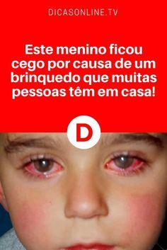 Brinquedos perigosos   Este menino ficou cego por causa de um brinquedo que muitas pessoas têm em casa! Atenção a este importante alerta. Leia e saiba ↓ ↓ ↓