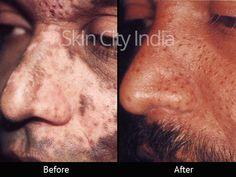 Skin City India - Vitiligo Treatment Before After