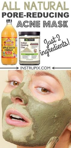 2 Ingredient, homemade face mask for acne, blackheads and large pores. It's great for oily and dry skin! It also helps with fine lines and general detoxing. There are so many benefits of this Indian Healing Clay mask. Homemade Detox, Face Scrub Homemade, Homemade Face Masks, Homemade Skin Care, Homemade Products, Acne Face Mask, Diy Face Mask, Face Skin, Diy Masque