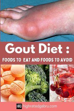 Uric Acid Diet, Gout Diet, Good Health Tips, Health And Fitness Tips, Health And Wellness, Good Foods To Eat, Foods To Avoid, Foods Good For Gout, Gout Remedies