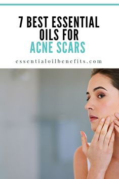 If you've struggled with acne, then you may already know that one of the worst things you can do is pick at your blemishes and dry them out. This will only aid in acne scars! But if you've made those mistakes along the way, there are essential oils that y Cystic Acne Treatment, Scar Treatment, Acne Treatments, Oils For Scars, Oils For Skin, Acne Hormonal, Mascara, Essential Oils For Face, Cystic Acne Essential Oil