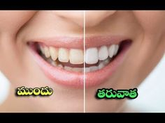 How to get glowing white teeth at home Teeth Whitening Methods, Natural Teeth Whitening, Teeth Whiting At Home, Stronger Teeth, Dentist In, Healthy Beauty, White Teeth, Home Remedies, Health Tips