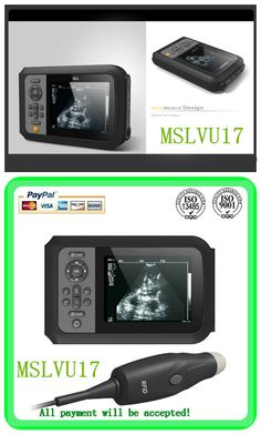 hospital ultrasound machine cost