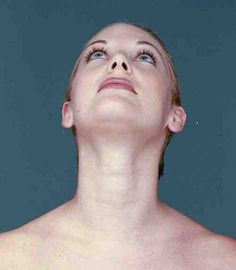 Facial Workouts: How To Firm Up Saggy Neck Skin And Reduce Turkey Neck: Face Exercises And Tips To Lose And Lessen Turkey Neck Yoga Facial, Facial Massage, Facial Muscles, Double Chin Exercises, Natural Face Lift, Natural Beauty, Facial Exercises, Saggy Neck Exercises, Yoga Exercises