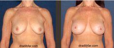 Breast Augmentation, Tear Drop Gel 250cc, Dual Plane