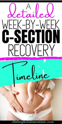 C-Section Recovery Timeline! Wondering what your c-section recovery timeline will be like? Read here for a detailed week-by-week c-section recovery timeline! c-section recovery tips from a mom who had 4 c-sections! #csection #csectionrecovery #postpartum #csectionrecoverytimeline #pregnancy Post C Section Exercise, After C Section Workout, After Baby Workout, C Section Recovery Timeline, Kids And Parenting, Parenting Hacks, Breastfeeding After C Section, C Section Scars, Body After Baby