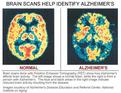Alzheimer's Cases May Triple by 2050  http://voices.yahoo.com/alzheimers-cases-may-triple-2050-12008779.html?cat=5