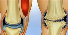 Knee pain can be caused by a wide range of causes, such as underlying condition like arthritis, a sudden injury, or an overuse injury. Some of the most common symptoms of knee injury include swelling, Foam Roller Exercises, Knee Pain, Sore Muscles, Sciatica, Alternative Medicine, Aloe Vera, Health And Beauty, Natural Remedies, The Cure