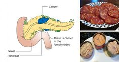 14 Cancer Causing Foods You Should Never Put In Your Mouth