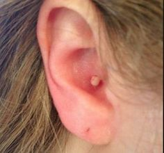 Pimple in Ear, Inside Ear Canal, Behind Ear - Cause, How to Get Rid & Pop Them www.hafana.com