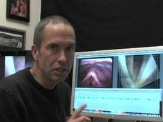 Laryngology 101: What is vocal cord paralysis? Part 2 of 2
