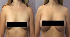 90% of ladies adore the idea of having bigger breasts. And nearly all of them contemplate plastic surgery at least once during that thinking period. But, why don't you just forget about plastic surgery and stick to these fully natural breast enlargement solutions. 6-Plants-That-Make-Breast-Grow 1.Sweet Root This plant is best in increasing your estrogen and prolactin level. That results in your breasts increasing in volume and becoming a lot more voluptuous. 2.PuerariaMirifica This one is…