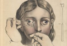 Brutal Medical Diagrams Reveal Horrors Of 19th-Century Surgery