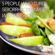 5 People Who Cured Seborrheic Dermatitis with Diet Alone