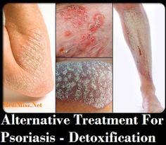 alternative treatment for psoriasis detoxification. Black Bedroom Furniture Sets. Home Design Ideas