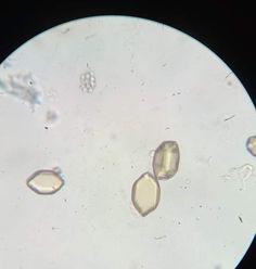 Uric Acid, Crystals