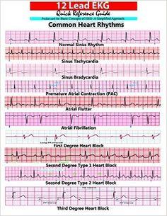 Electrophysiology study nurse